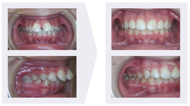 Protruding Example Teeth